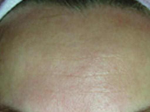 After-Bore na čelu