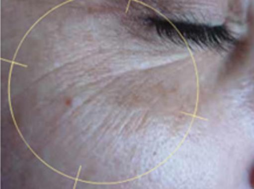 Before-Bore oko očiju