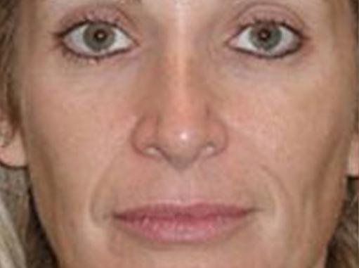 Before-Mikrodermoabrazija celog lica